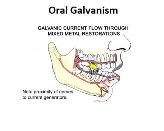 101114053743OralGalvanism